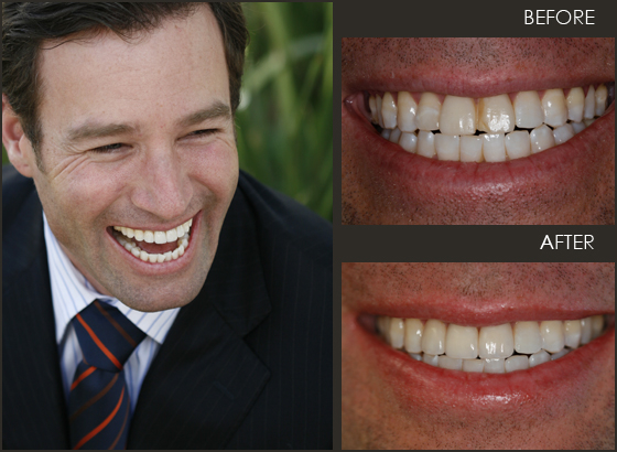 Man feeling confident after his new veneers