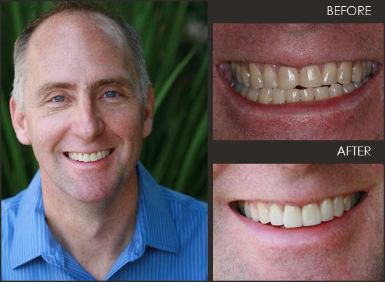What a great smile and newly found confidence! See how veneers can help your smile.