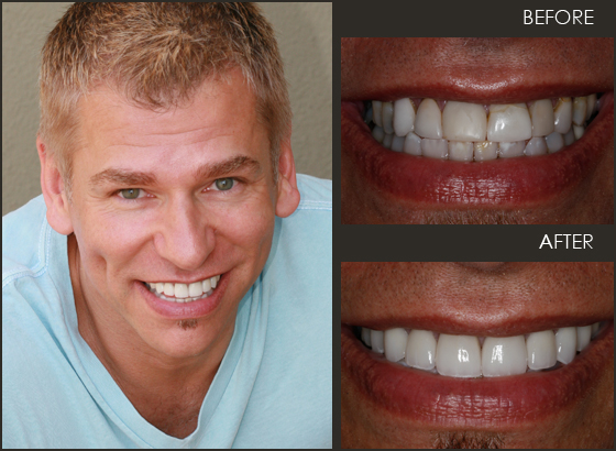 See what veneers can do for your smile!