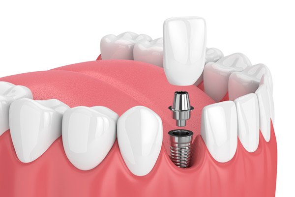 Diagram of single tooth dental implant from Toomin & Bieber Aesthetic Comprehensive Dentistry