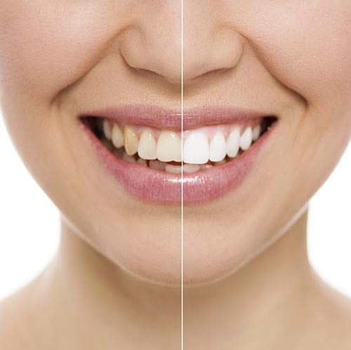 A woman's before and after picture during a whitening treatment.